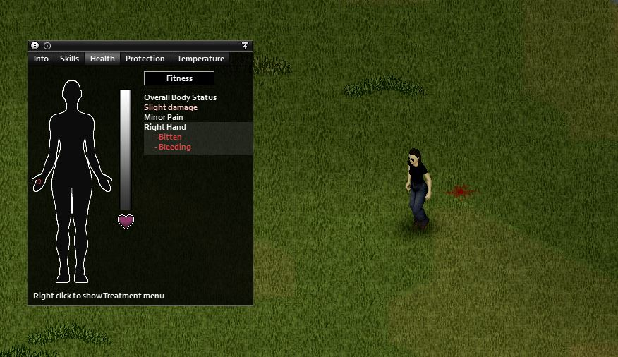 getting bitten in project zomboid. The image shows a player who has been bitten on the right hand by a zombie
